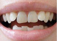 original mouth