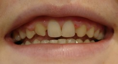 Before Veneer treatment