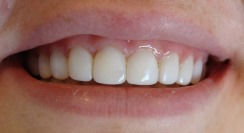 Composite veneer treatment