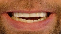 Artificially reposition of the teeth