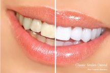 Teeth Whitening - Zoom