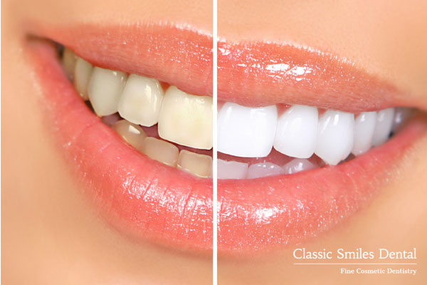 Teeth Whitening - Zoom