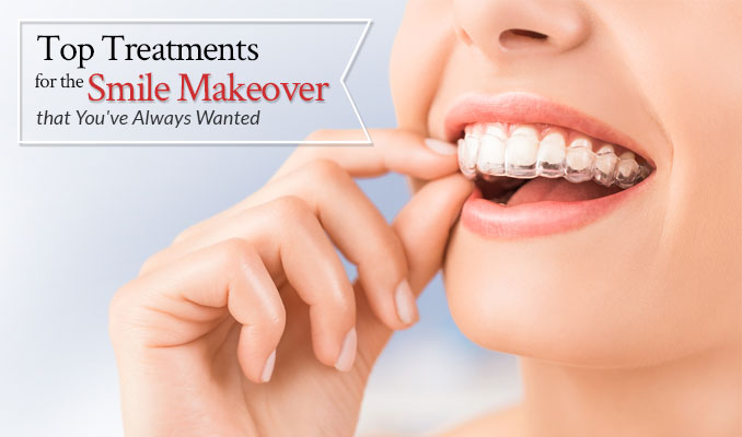 Top Treatments for the Smile Makeover that You've Always Wanted