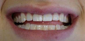 Dark Teeth