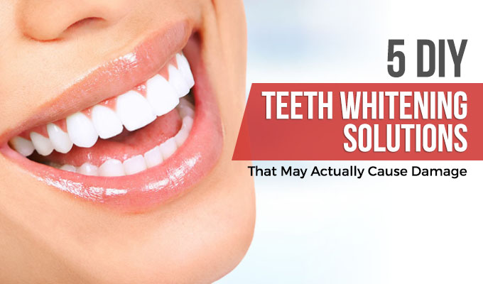 5 DIY Teeth Whitening Solutions That May Actually Cause Damage Featured Image